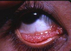 沙眼与眼结石的区别?